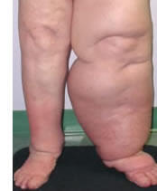Lymphedema is treated at Encompass HealthCare & Wound Medicine, Michigan.
