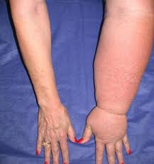 Venous Insufficiency and edema can be treated at Encompass Healthcare & Wound Medicine, West Bloomfield, Michigan.