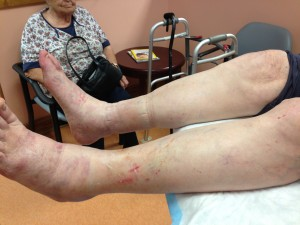 Lymphedema in the lower extremities, Encompass HealthCare & Wound Medicine, West Bloomfield, Michigan