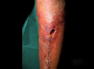 Example of a surgical wound treated at Encompass Healthcare.