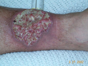 "Necrotizing fasciitis (""flesh-eating"" disease) is treated at Encompass HealthCare & Wound Medicine, West Bloomfield, Michigan."