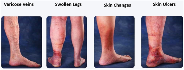 Chronic Venous Insufficiency (CVI) presents in several ways.