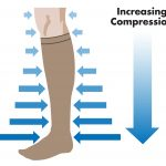 Traditional compression stockings.