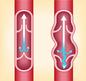Figure 6. Left: Normal valves allow blood to flow upward and block backflow (reflux). Right: Faulty valves allow blood to flow back down to pool in the lower legs and feet.