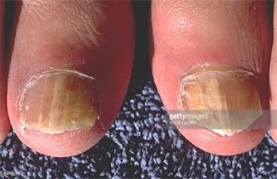 4 infections, described by Dr. Bruce Ruben, at Encompass HealthCare & Wound Medicine, West Bloomfield, Michigan.