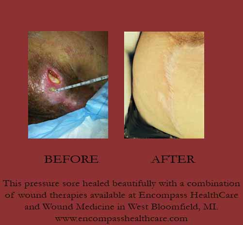 Before and after pressure sore, Encompass HealthCare & Wound Medicine, West Bloomfield, Michigan.