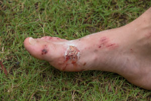 Foot ulcers are treated at Encompass HealthCare & Wound Medicine, West Bloomfield, Michigan.