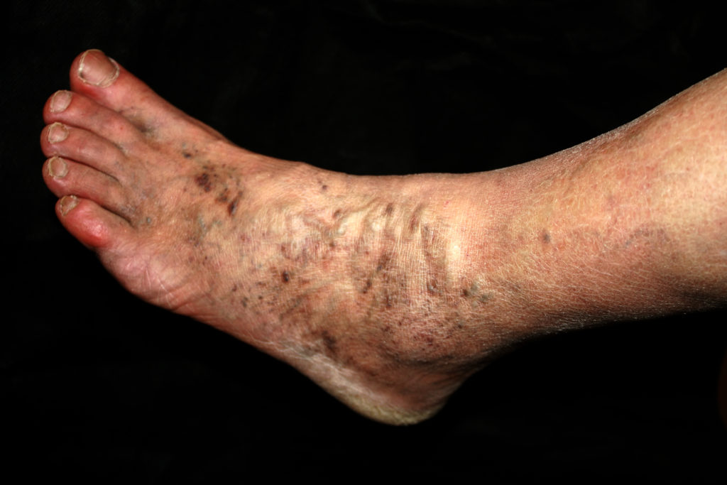Varicose veins can be venous insufficiency which can lead to leg wounds, Encompass HealthCare & Wound Medicine, West Bloomfield, Michigan.