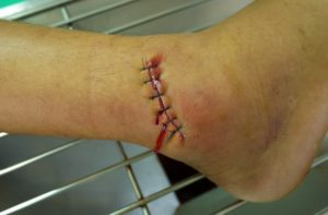 Non-healing surgical wounds are treated at Encompass HealthCare & Wound Medicine, West Bloomfield, Michigan.
