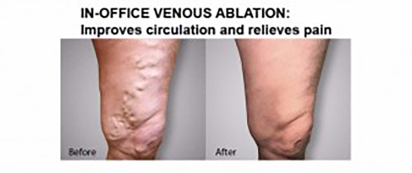 Venous ablation is performed at Encompass HealthCare & Wound Medicine, West Bloomfield, Michigan