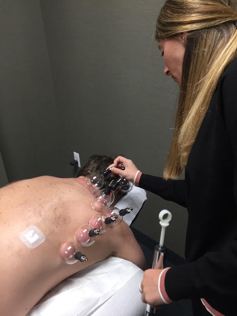 Cupping, Michigan Acupuncture Studio in West Bloomfield, Michigan